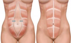 abdominoplastie4